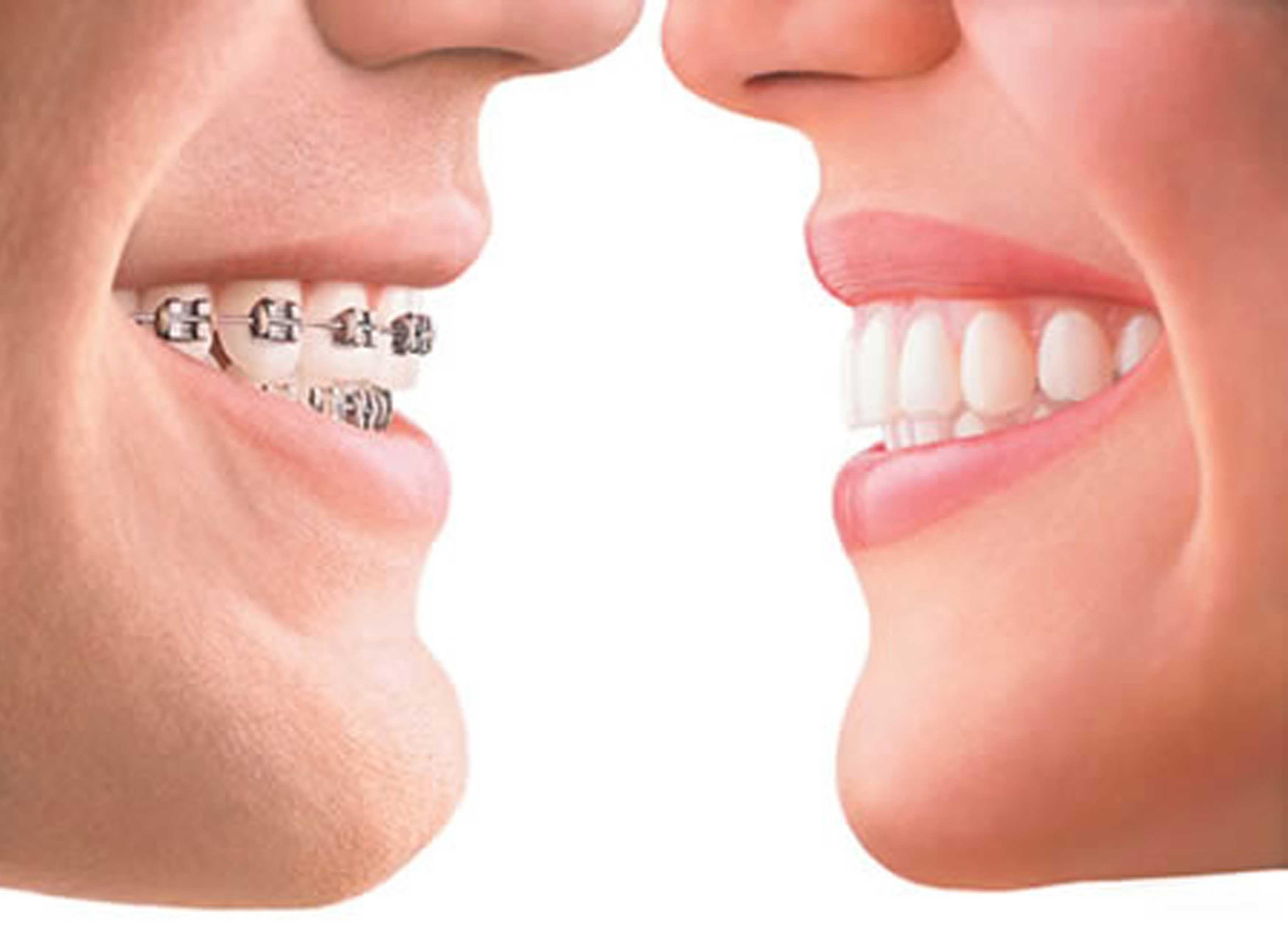 Resultado de imagen de ortodoncia deltadent youtube